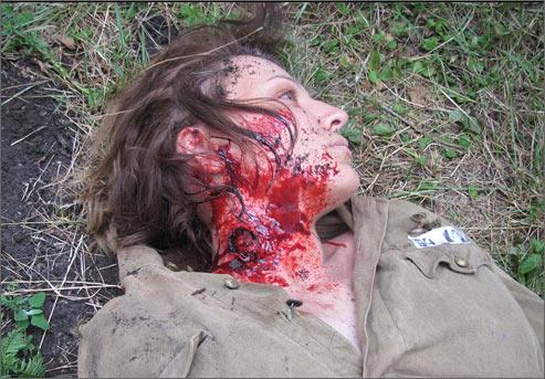 Проникающее пулевое ранение с неблизкого расстояния