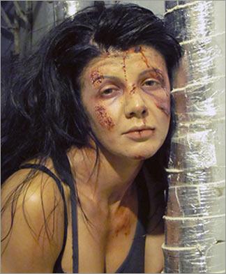 Раны жертв насилия